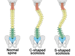 The Spinal Series: Scoliosis